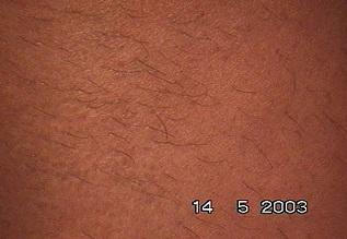 Evolução tratamento depilar 1