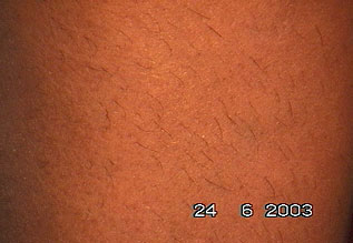 Evolução tratamento depilar 2
