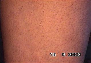 Evolução tratamento depilar 3