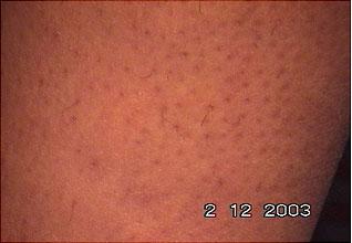 Evolução tratamento depilar 4
