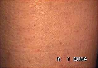 Evolução tratamento depilar 5